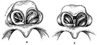 Атрезия хоан – симптомы, причины, диагностика, лечение и профилактика