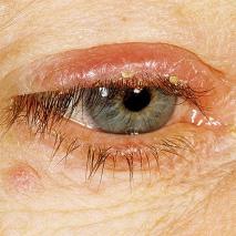 Демодекоз: симптомы, признаки, разновидности заболевания, его причины и методы лечения и профилактики.