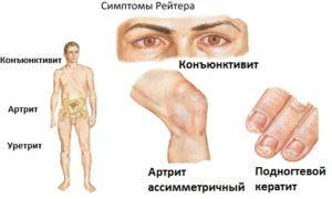 Синдром Рейтера: симптомы и лечение, анализы, фото, лечение женщин
