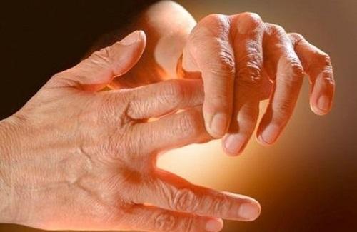 Акродерматит Аллопо: фото, симптомы, лечение, дифференциальная диагностика