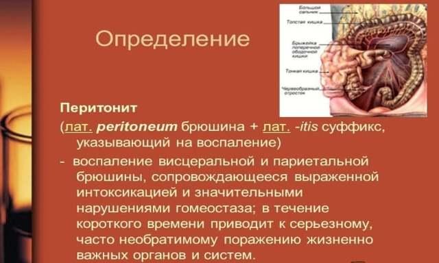 Желчный перитонит: клинические формы, симптомы, лечение, последствия