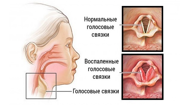 Поднялась температура и болит горло после кальяна, что со мной?