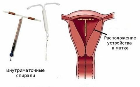 Спираль Мирена: инструкция, побочные эффекты, введение гормональной ВМС Мирена, осложнения
