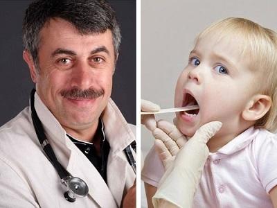 Ларингит у детей: симптомы и лечение в домашних условиях, советы доктора Комаровского