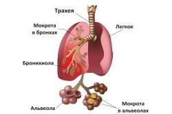 Клебсиелла: симптомы, пневмония и клебсиелла, клебсиелла в мазке, чем лечить клебсиеллу