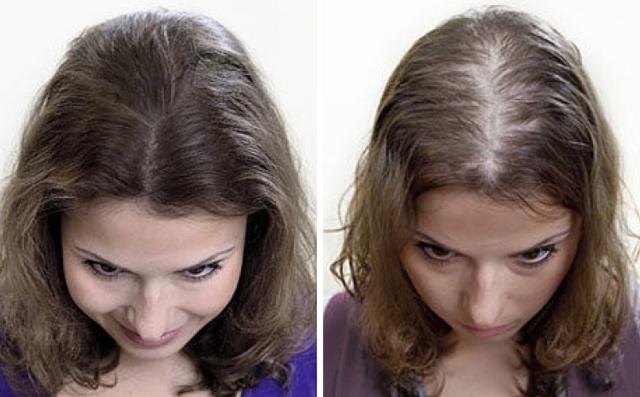 Алопеция — симптомы андрогенетической, очаговой алопеции, методы лечения у мужчин и женщин