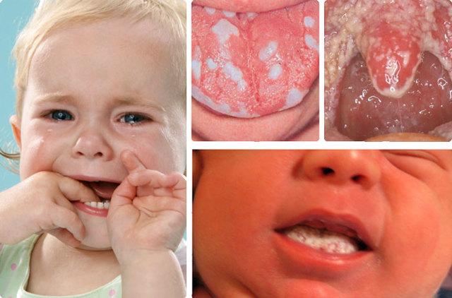 Кандидозный стоматит: симптомы и лечение у детей и взрослых
