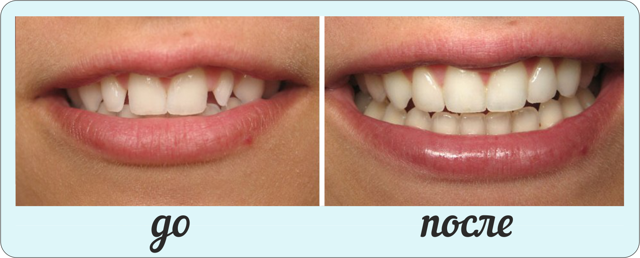 Коронки на зубы: какие бывают, какие лучше, плюсы и минусы коронок