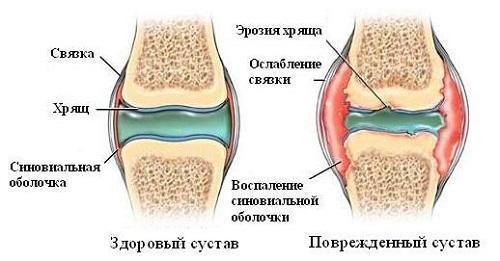 Почему болят и хрустят все суставы