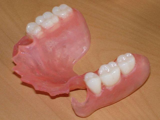 Зубные протезы при полном или частичном отсутствии зубов – съемные, несъемные