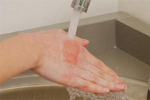 Ожоговая болезнь: стадии, симптомы, лечение, профилактика