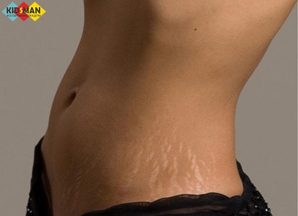 Как убрать растяжки на груди, что делать, удаление растяжек на груди после родов