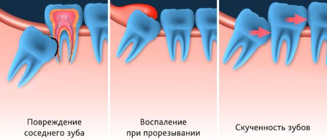Сильно болят нижние зубы, не могу жевать, что делать?
