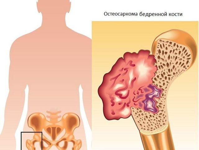 Остеосаркома бедра у взрослых и у детей: симптомы, лечение, сколько с ней живут