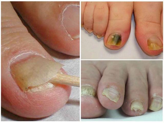 эффективное быстрое средство от грибка ногтей на ногах