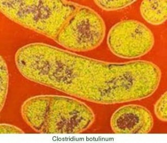 Ботулизм: симптомы, диагностика, лечение и профилактика ботулизм