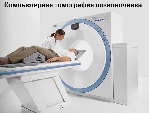 Компрессионный перелом позвоночника грудного, поясничного отдела: что это, диагностика