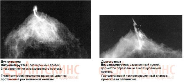 Дуктография молочных желез: что это такое, расшифровка, подготовка к галактографии