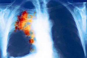 Если бабушка умерла от рака, повышен ли риск заболеть им?
