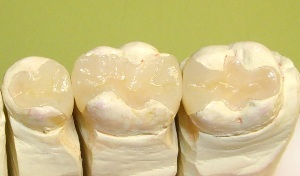 Современные зубные пломбы: виды, преимущества и недостатки каждого из видов