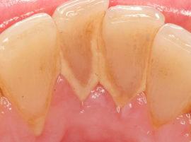 Что означает привкус крови во рту