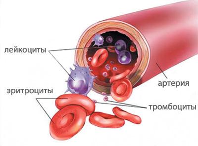 Почему понижен гемоглобин и образовался тромб