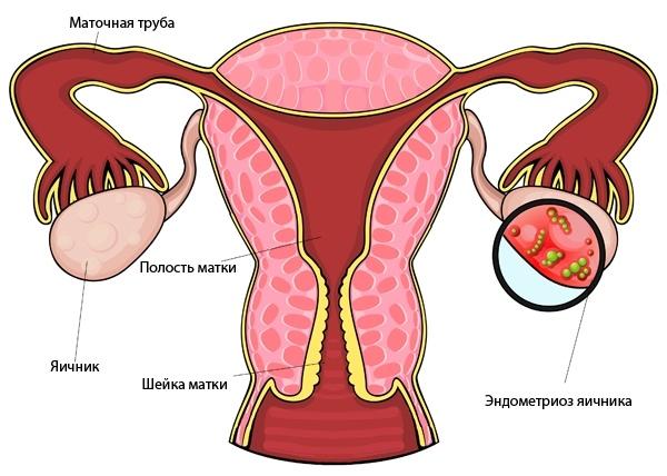 Эндометриоз яичников: что это такое, симптомы и лечение