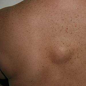 Жировики: причины возникновения, характерные признаки и методы лечения липомы