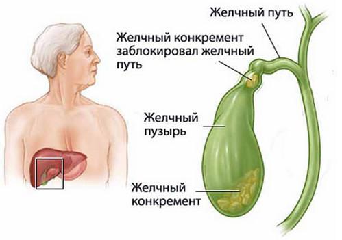 Желчнокаменная болезнь: признаки, причины развития, диагностика, осложнения и лечение желчнокаменной болезни
