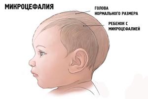 Чем опасен вирус Зика: описание болезни Зика, прогнозы ВОЗ, угроза распространения в России