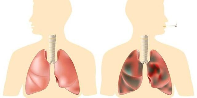 Показания к томографии легких, если снимок показал затемнение в легких: КТ при длительном сухом кашле