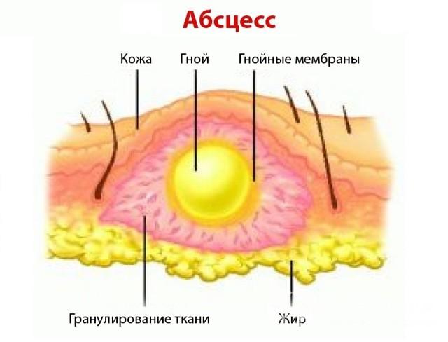 Абсцесс языка: причины, симптомы и методы лечения | ОкейДок