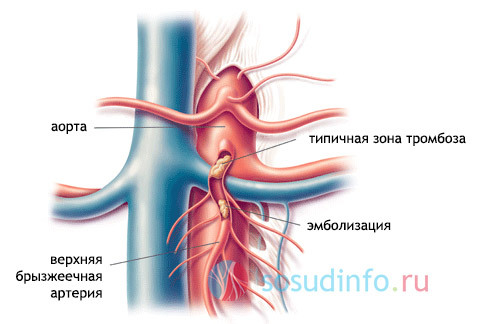 Острая закупорка сосудов брыжейки кишечника: причины, симптомы, лечение