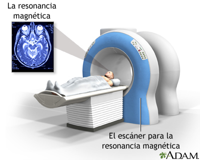 Как подтвердить диагноз эпилепсия