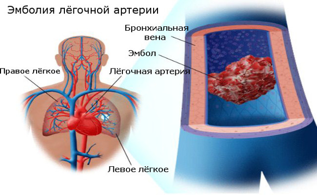 Боль в грудине посередине при вдохе, при нажатии, при движении – причины
