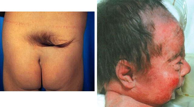 Гипертихоз: признаки, как наследуется, лечение гипертихоза у детей и взрослых