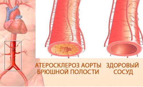 Инфаркт кишечника – что это такое, симптомы, первые признаки, последствия, прогноз