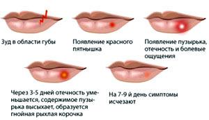 Герпес на губах при беременности в первом, втором, третьем триместре: чем лечить, чем опасен