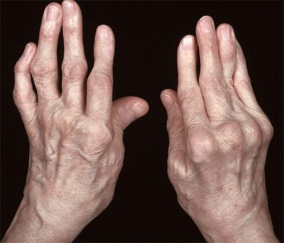 Подагрический артрит – симптомы, принципы медикаментозного лечения, лечение подагрического артрита народными средствами и диета при подагрическом артрите