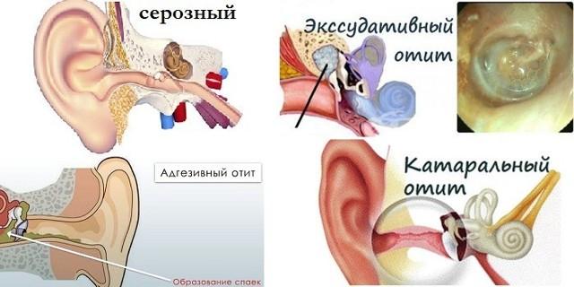 Средний отит уха у детей и взрослых: симптомы, лечение, клинические рекомендации