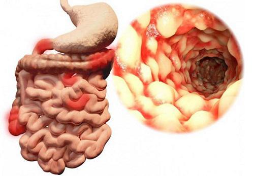 Илеит кишечника: что это такое, симптомы и лечение, диета при илеите