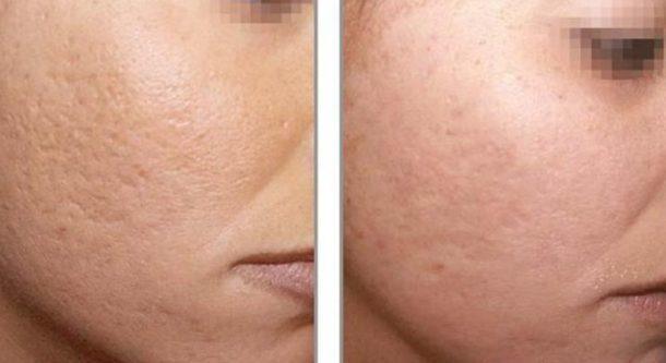 sprs-терапия – правила проведения омоложения кожи, противопоказания