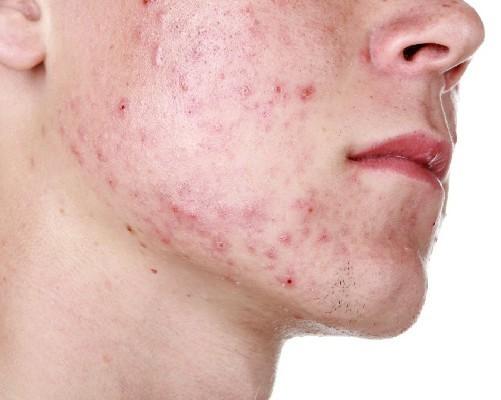 Уплотнение в виде шарика под кожей на шее сбоку – что это может быть