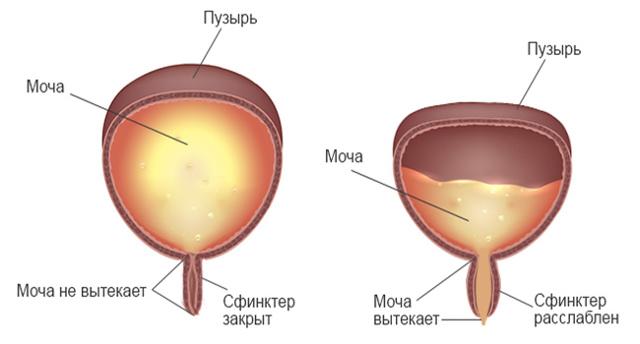 Нейрогенный мочевой пузырь: лечение у женщин, детей и мужчин, профилактика и прогноз