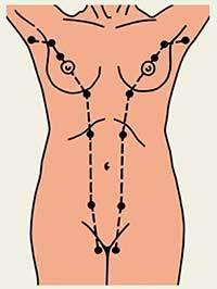 Добавочная молочная железа под мышкой, доля молочной железы: что это такое