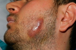 Актиномикоз: что это такое, симптомы у человека, лечение, операция