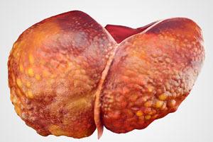 Цирроз печени: симптомы и лечение, как ставится диагноз цирроз печени, стадии цирроза печени