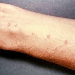 Липома гортани, жировик: фото, симптомы, диагностика, лечение
