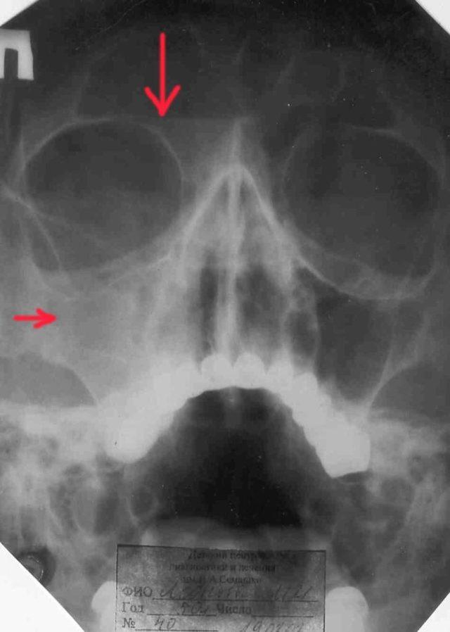 Рентген пазух носа: показания, фото при гайморите, как сделать рентген гайморовых пазух