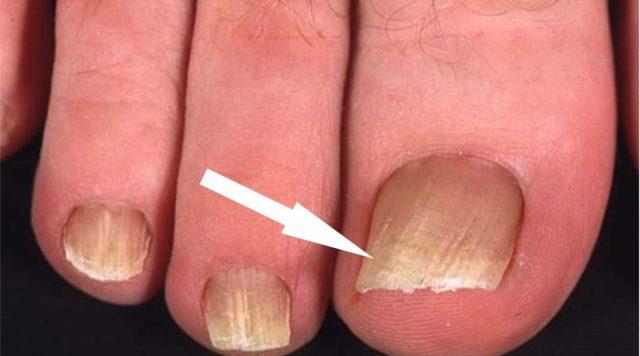 Лечение грибка ногтей лазером, лечение грибка ногтей при беременности, лекарства от грибка ногтей